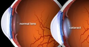 Cataract Eye Care by Major Opticians Waterford Ireland South East