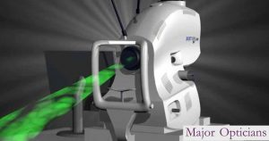 3D OCT scan Eye Care Major Opticians Waterford Ireland South East