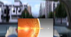 Eye Care Astigmatism Major Opticians Waterford Ireland South East