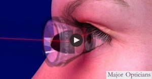Glaucoma Eye Care Major Opticians Waterford Ireland South East